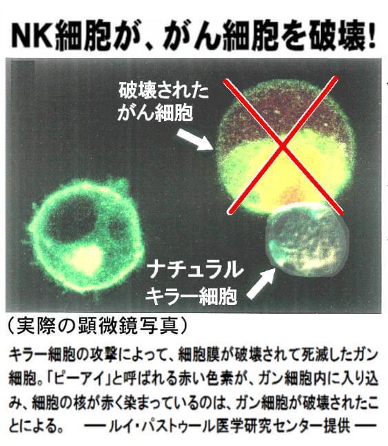 NK細胞が体内で発生した「がん細胞」を発見し、駆除