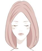 顔のシミの種類老人性色素斑(日光性黒子)