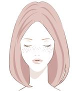 顔のシミの種類雀卵斑(そばかす)
