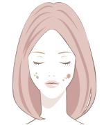 顔のシミの種類炎症後色素沈着