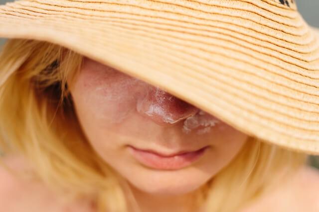 ナールスゲンの効果紫外線老化予防